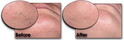 Female Laser Hair Removal