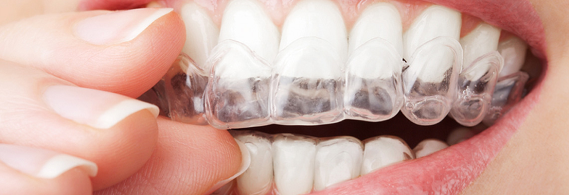 Home Teeth Whitening Custom Trays