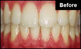 Before Laser Teeth Whitening Treatment