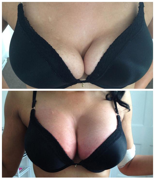 https://harleylaserclinic.co.uk/wp-content/uploads/2017/03/breast-11.jpg