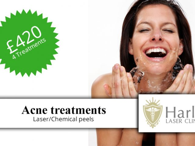 https://harleylaserclinic.co.uk/wp-content/uploads/2018/04/Acne-treatments-t-1-640x480.jpg
